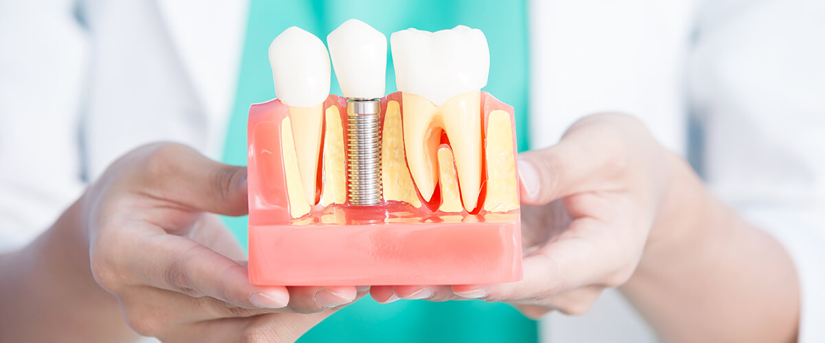 Maestría en Rehabilitación Bucal e Implantes Dentales