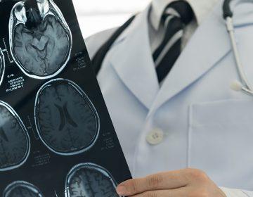 Especialidad en Neurocirugía