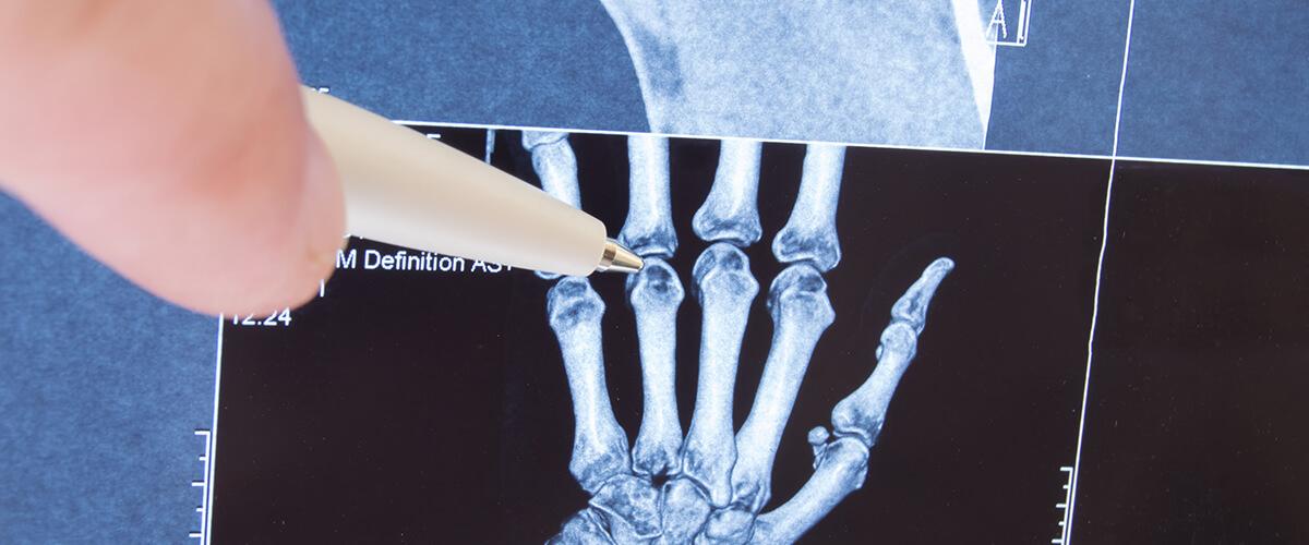 Especialidad en Radiología e Imágenes Diagnóstica