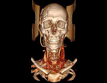 Curso Radiología Clínica Avanzada